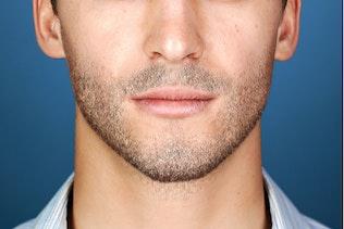 Thumbnail for Facial Hair Photoshop Action